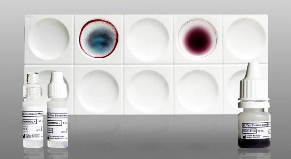 Elitex Bicolor Mono Mononucleosis Identification Test